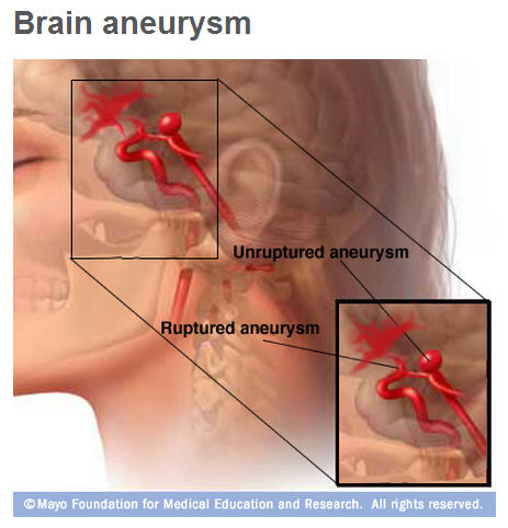 medical Illustration of unruptured and ruptured brain aneurysm