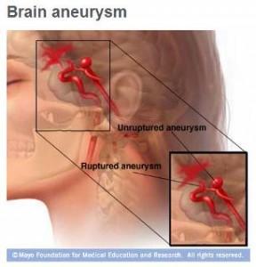 Ilustración médica de un aneurisma cerebral intacto y reventado