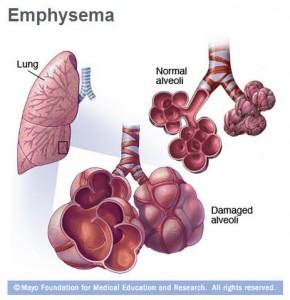 medical illustration of damaged lung with emphysema