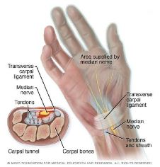 Ilustración del dolor de la mano