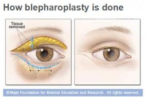Ilustración médica sobre cómo se realiza la blefaroplastia en los ojos.