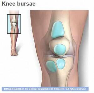 Ilustración médica de la bursitis de la rodilla con sacos llenos de líquido