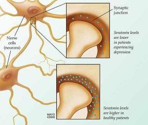 illustration of nerve cells depicting serotonin levels affecting depression