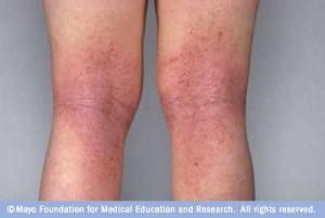 Sarpullido en la piel y eccema en las piernas