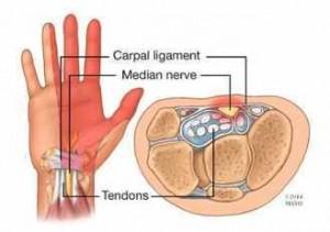 Ilustración de una mano y del túnel carpiano
