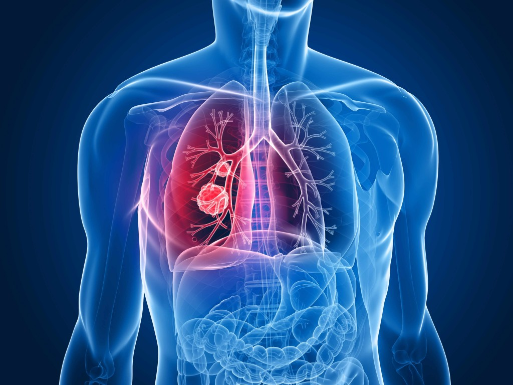 illustration showing chest, lungs and cancer tumor