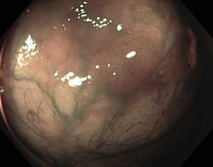 O adenoma é mais escuro, com vasos sanguíneos dilatados na superfície.