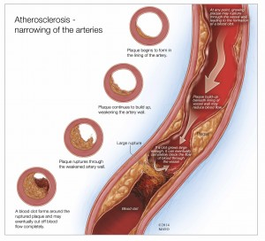 illustration of atherosclerosis narrowing of the arteries