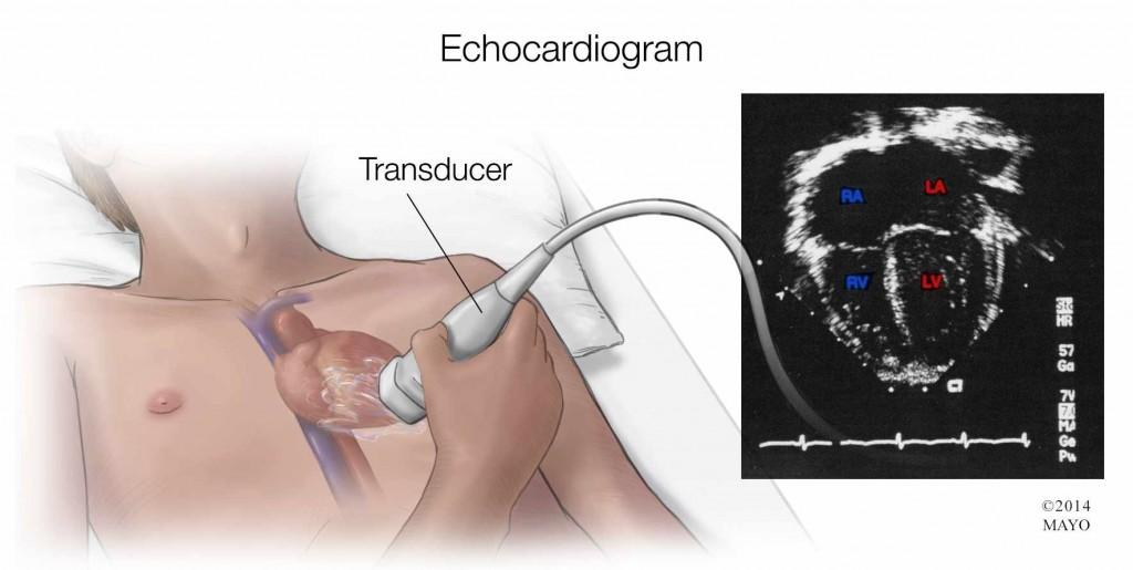 illustration of echocardiogram