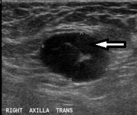 This ultrasound shows an abnormal lymph node before chemotherapy for breast cancer.