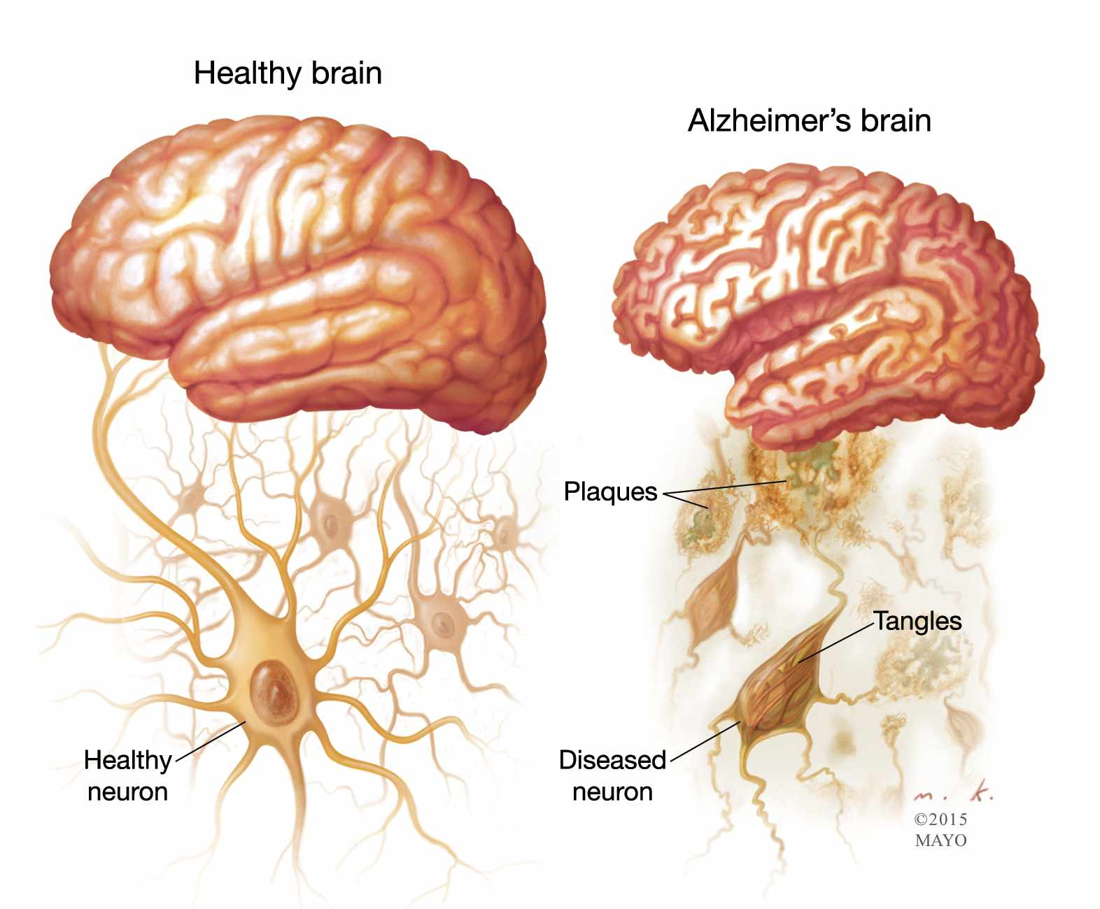 illustration of healthy brain and one with Alzheimer's