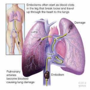 Ilustración de una embolia pulmonar por trombosis venosa profunda
