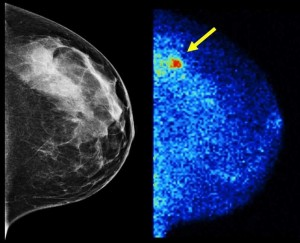 Molecular Breast Imaging (right) detected 3.6 times as many invasive cancers as digital mammography (left) in the latest study of more than 1,500 women with dense breast tissue. Results are published in the American Journal of Roentgenology.