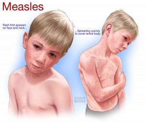 illustration of young boy with measles on his face and body