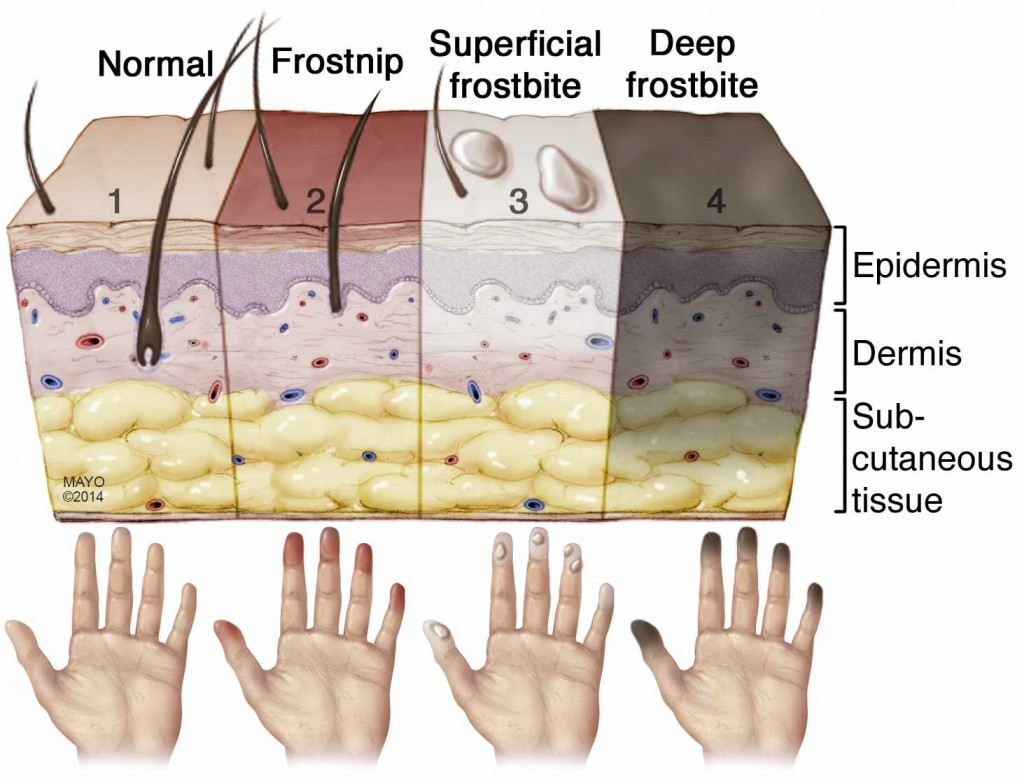 illustration of stages of frostbite and how it affects the skin