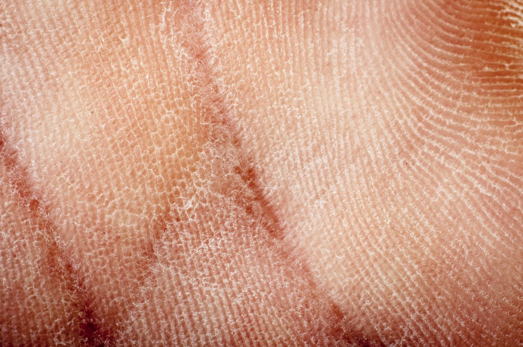 close up of hand with dry skin