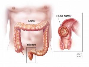 illustration of rectal cancer