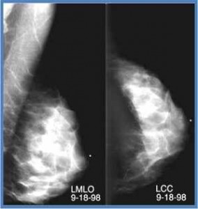 Dense breast w cancer