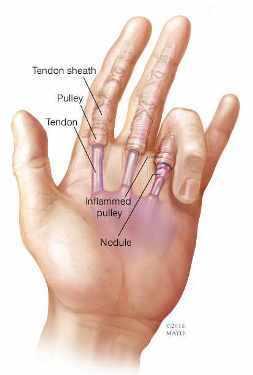 Ilustración de una mano con dedo en gatillo