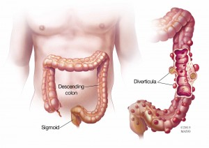 illustration of colon with diverticula, diverticulitis,