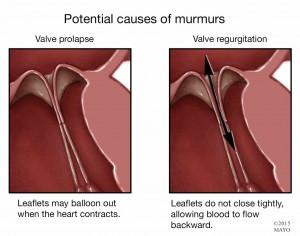 illustration of valve prolapse, heart murmur
