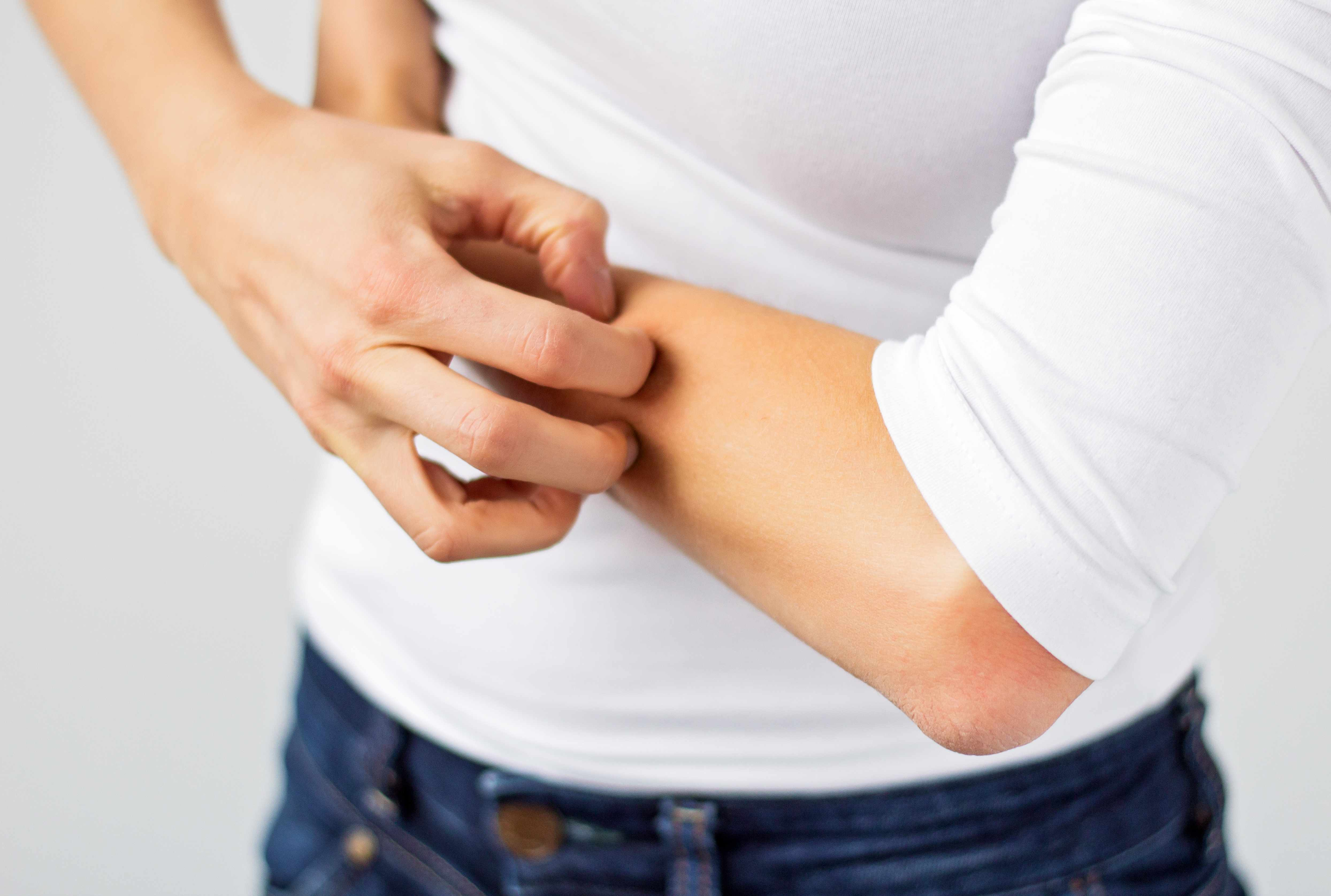 woman scratching her arm, dry skin itch