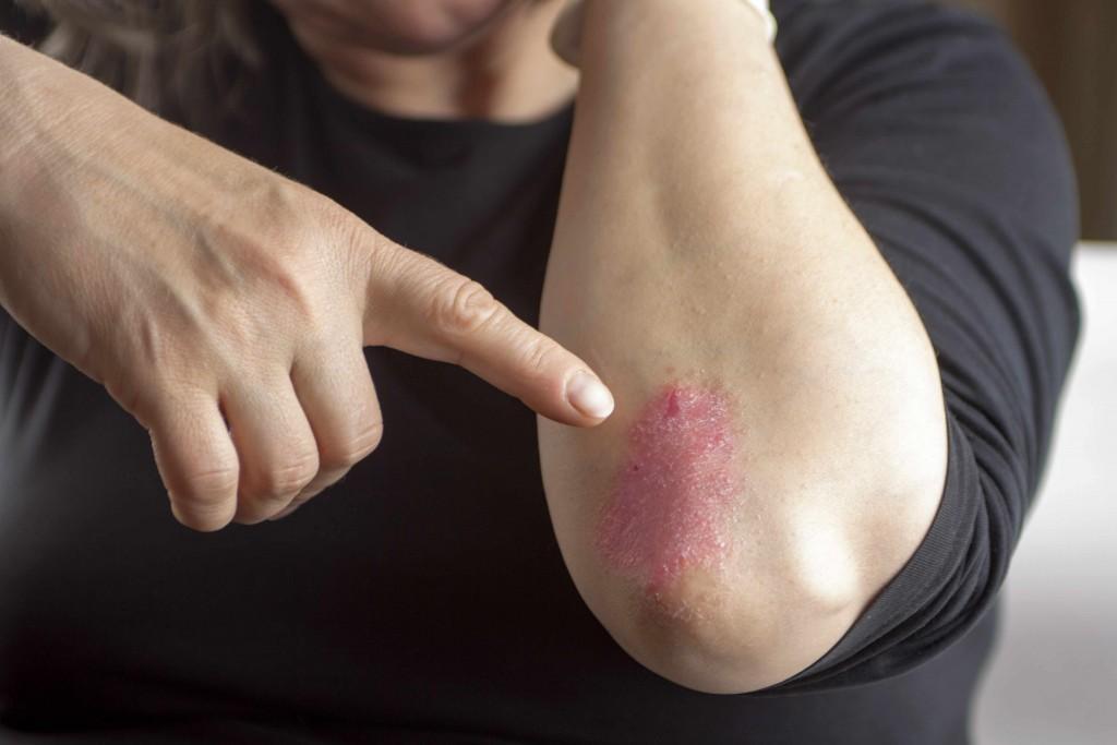 Acercamiento del codo que muestra piel seca que pica y con psoriasis