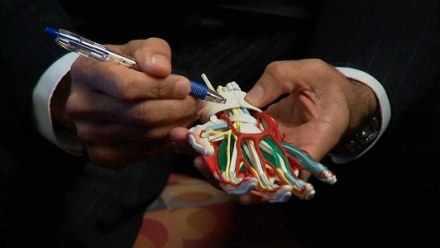 modelo anatómico de la mano y muñeca que muestra huesos, tendones, nervios y arterias