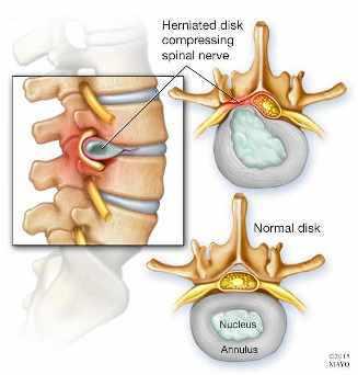 Ilustración de una hernia de disco en la columna vertebral (arriba) y de un disco normal (abajo)
