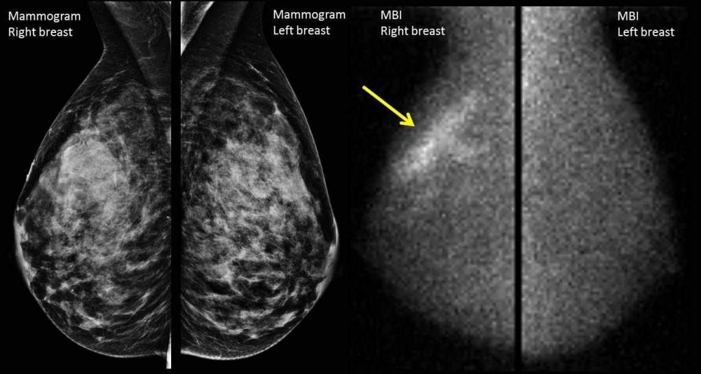 MBI, Molecular breast imaging image, radiology, mammogram