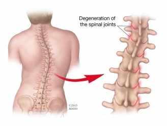 Ilustración de la columna vertebral de un adulto con escoliosis
