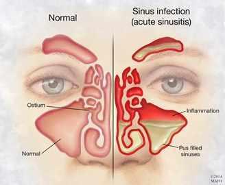 Ilustración de la cara de una persona con infección e inflamación de los senos paranasales