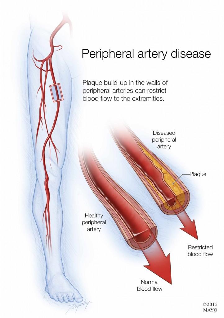 illustration of peripheral artery disease
