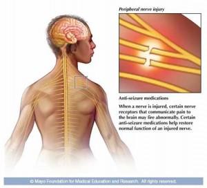 chronic pain med