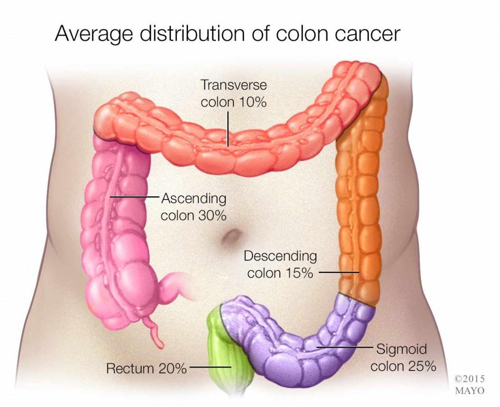 illustration of colon cancer distribution