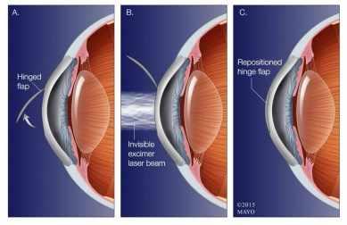 Ilustración de la cirugía LASIK para la vista