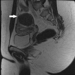A magnetic resonance image of a fibroid