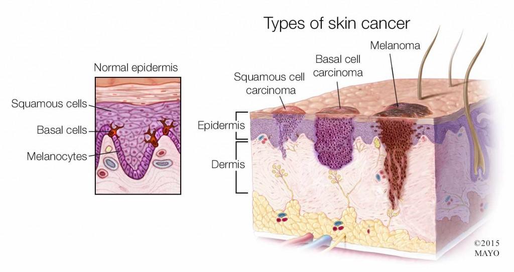 Ilustración médica de los tipos de cáncer de piel: melanoma, carcinoma basocelular y carcinoma de células escamosas