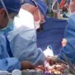 Image of heart transplant surgery