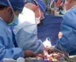 Imagen de una cirugía de trasplante cardíaco