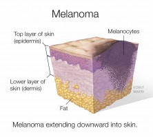 medical illustrations of melanoma, layers of skin
