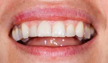 Acercamiento de la boca, labios y dientes