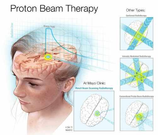Child receiving proton beam therapy: pencil beam scanning radiotherapy