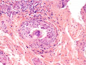 structures seen in a hematoxylin and eosin-stained perianal skin biopsy