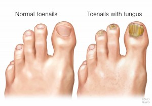 medical illustration of toenail fungal infection
