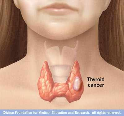 medical illustration of thyroid cancer