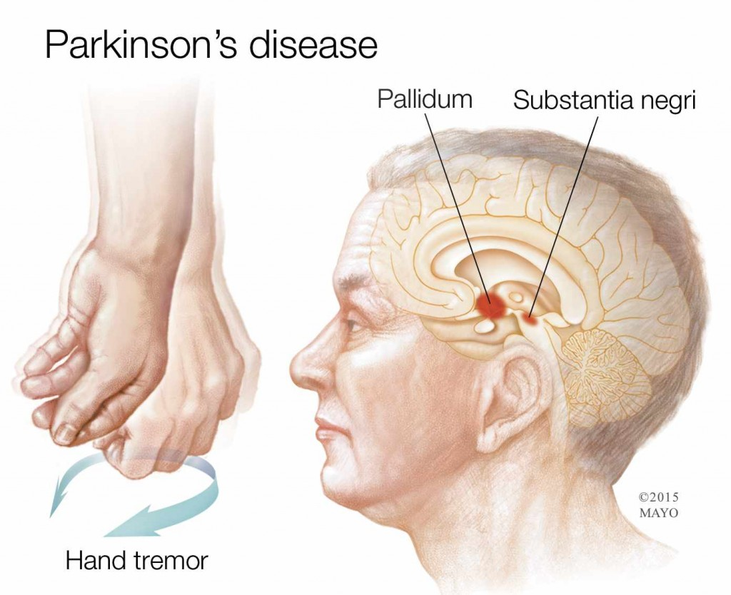 medical illustration showing hand tremor due to Parkinson's Disease, and location of the disease in the brain