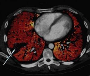 Imagen de una tomografía computarizada de una embolia pulmonar