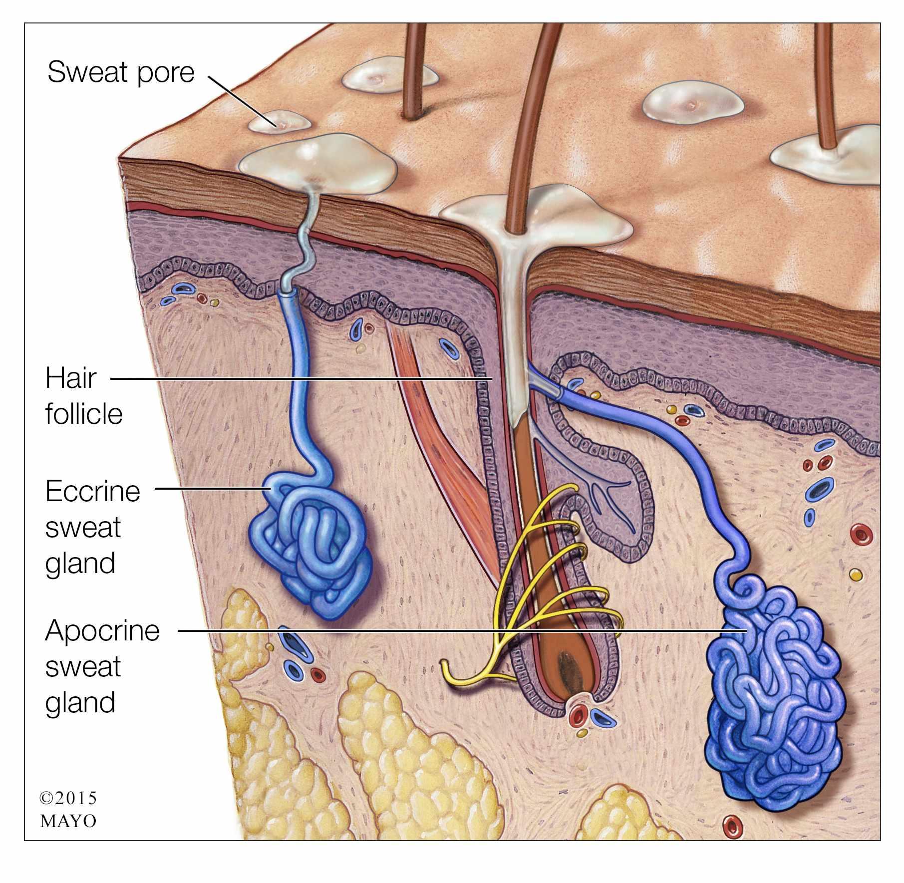 medical illustration of sweat pores, hair follicle, hyperhidrosis
