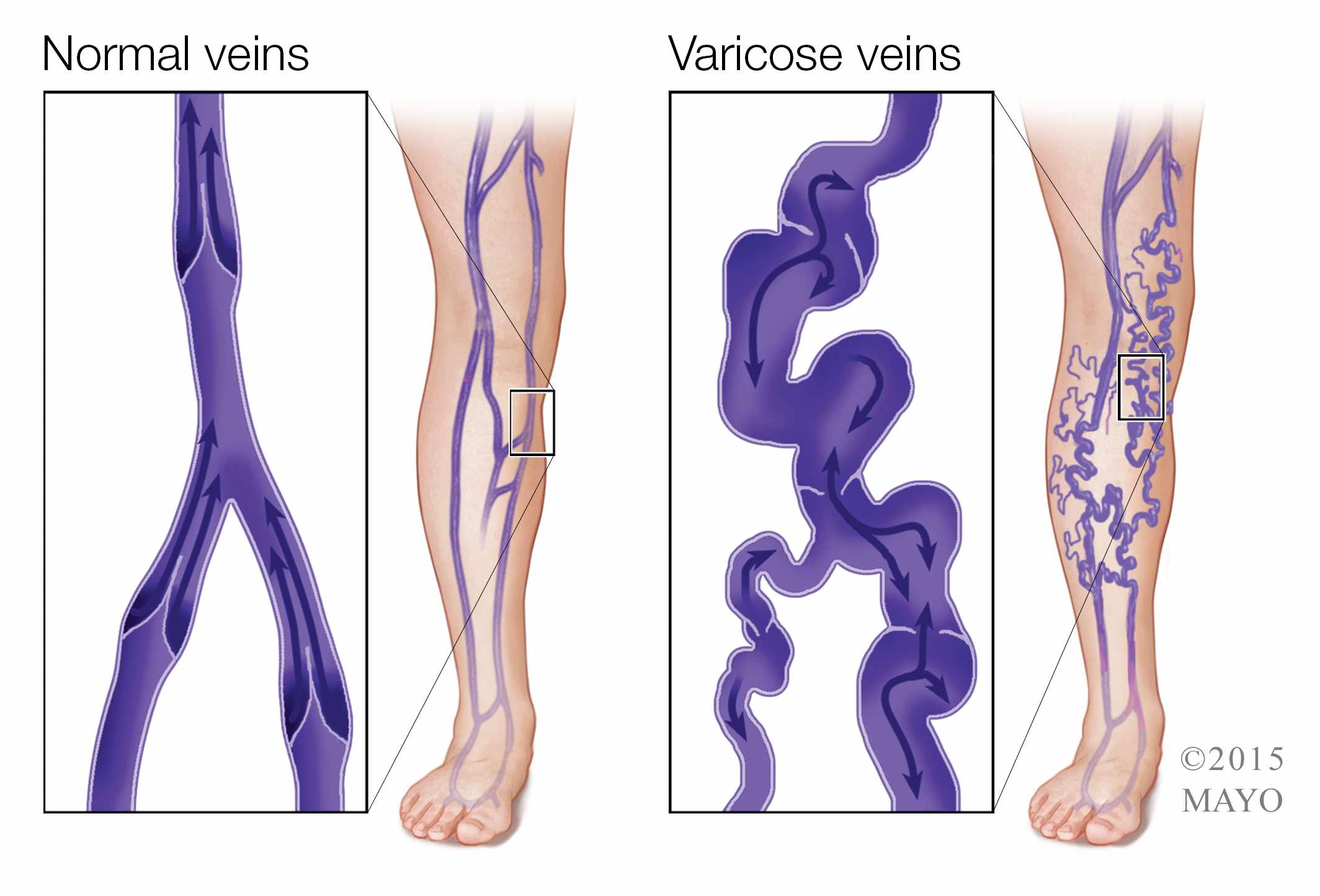 Medical illustration of varicose veins and normal veins in legs